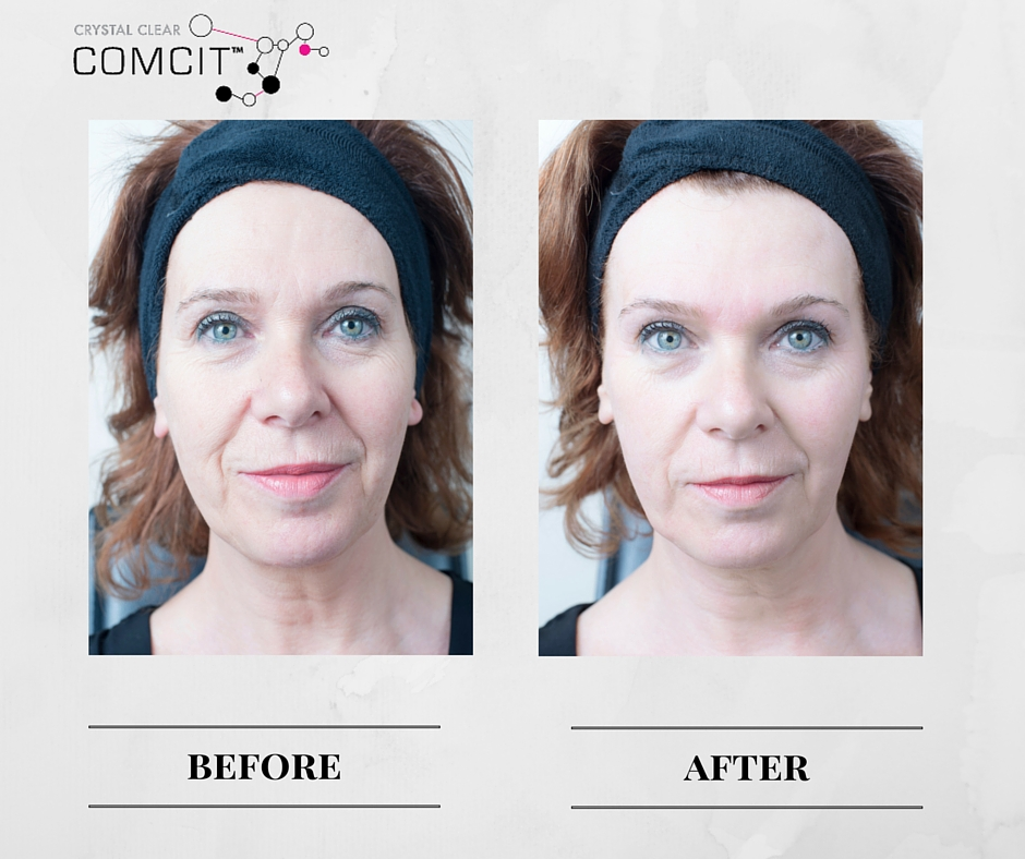 Crystal Clear COMCIT Before And After 2 APPROVED.jpg